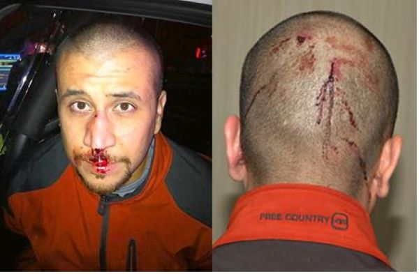 Photos of George Zimmerman�s Injuries